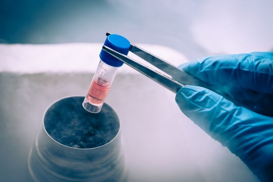 8 Things You Want to Know About Stem Cell Therapy